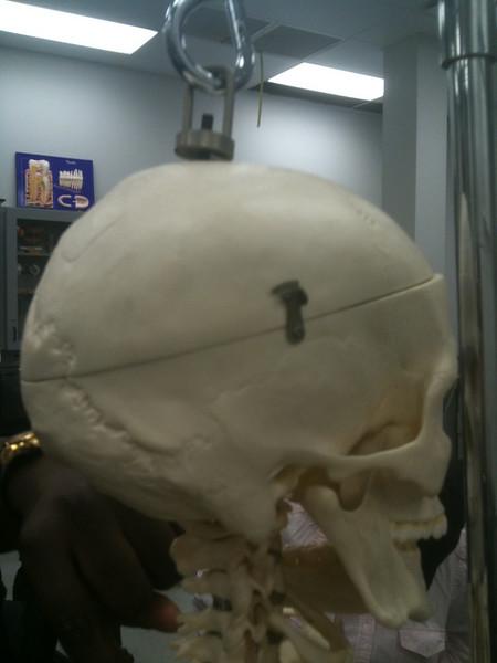 AnatandPhys Bones Fischer Williams Photo0068